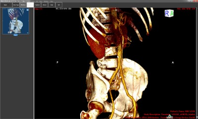 ORPALIS DICOM Viewer Free 1.1.2 screenshot